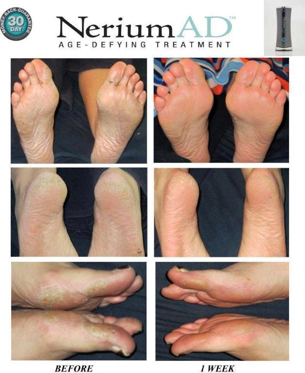 Photo shows improvement in appearance of texture of feet.