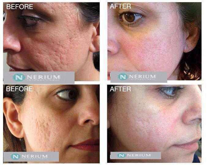 NeriumAD texture results