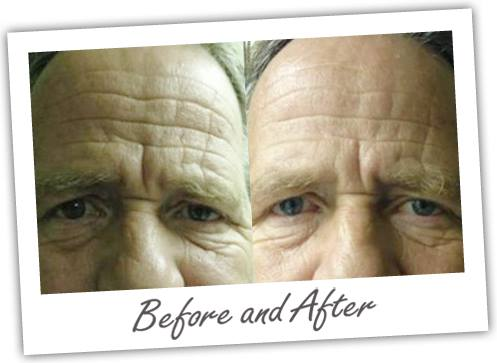 Photo shows improvement of deep lines in the forehead.