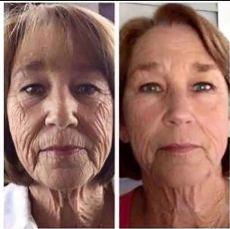 Photo shows improvement of deep lines on face and neck