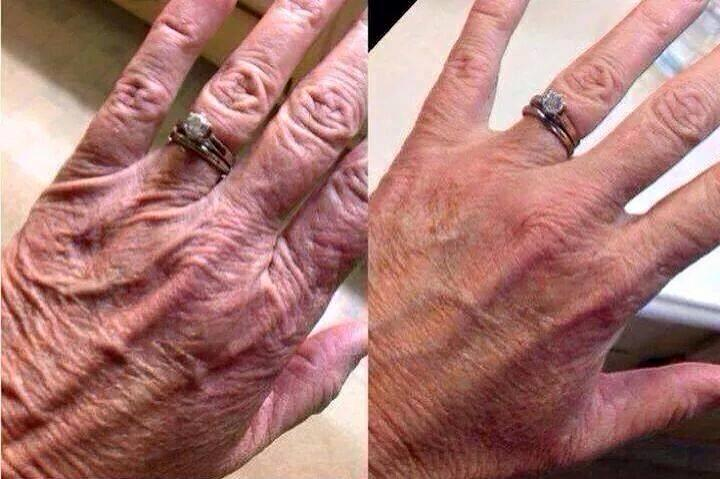 Photo shows improvement in appearance of wrinkles and texture on hand