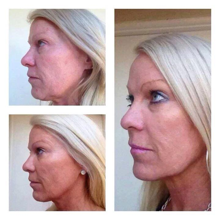 NeriumAD night and day cream results